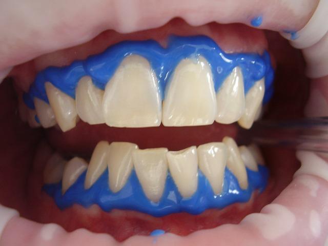 laserové bělení zubů.jpg